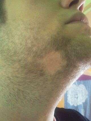 Alopecia areata beard area