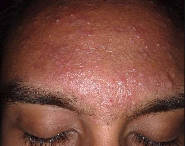 Mild acne on forehead