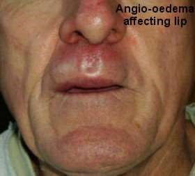 angiooedema of lip