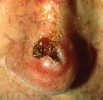 Squamous cell carcinoma on the tip of the nose