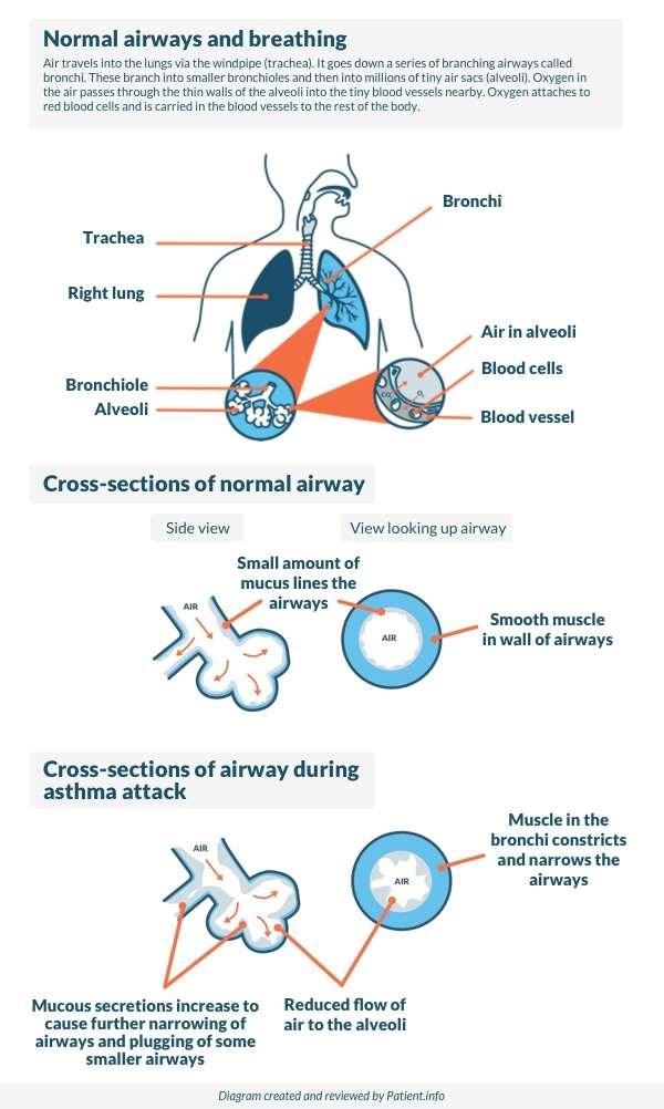 Asthma diagram new