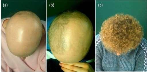 Alopecia half head treatment