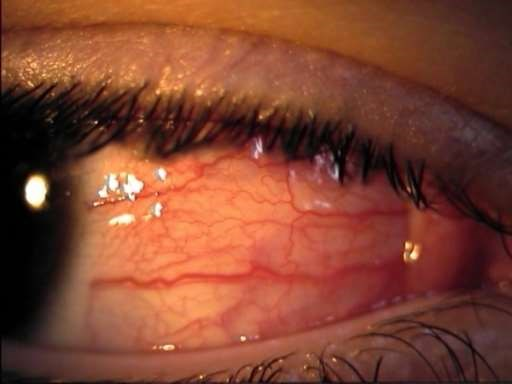 Diffuse episcleritis
