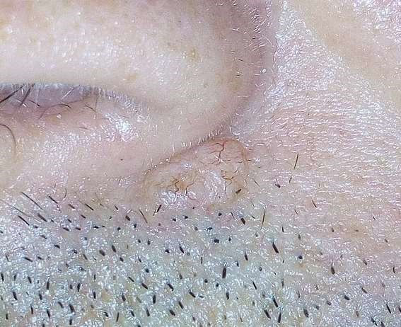 Basal cell carcinoma under the nose