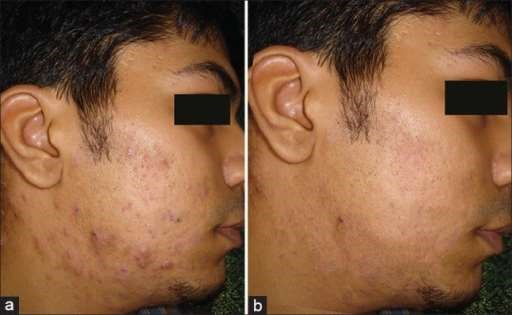 Before and after roaccutane use