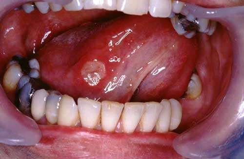 BEHCET'S DISEASE - TONGUE