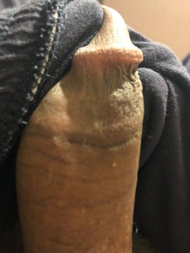 Genital warts by oral sex