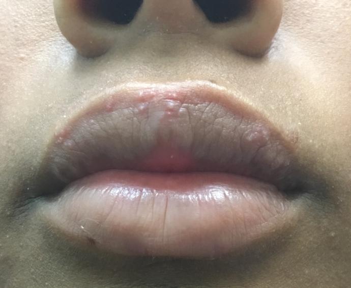 Does this look like herpes Im worried | Genital Herpes