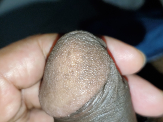 Small skin color bumps on penis head | Penis Disorders