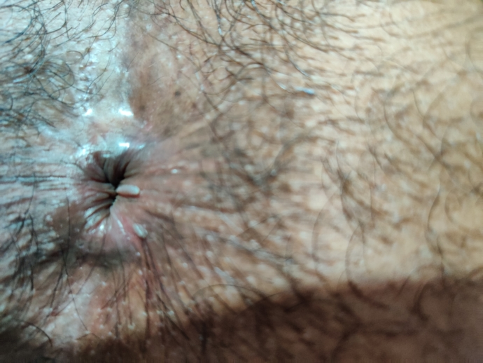 hpv hemorrhoids and Anus and