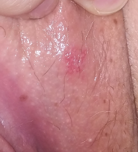Help !!! Friction burn or herpes!! My anxiety is very high
