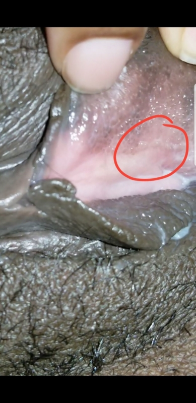 Can this be herpes? PIC | Genital Herpes Simplex | Forums