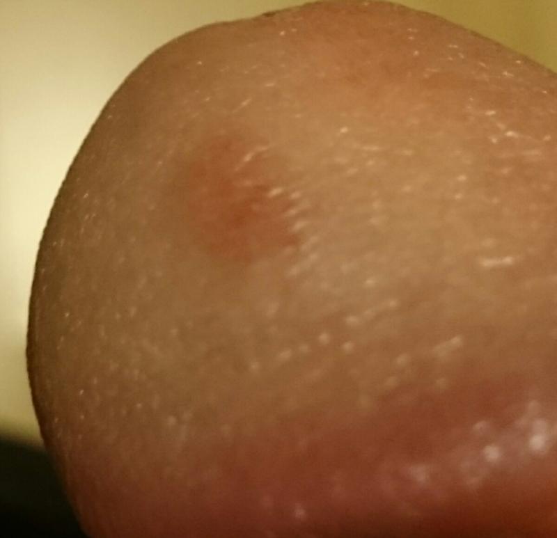 shiny spot on penile head