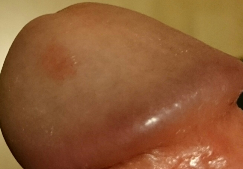 red patches on head of penis