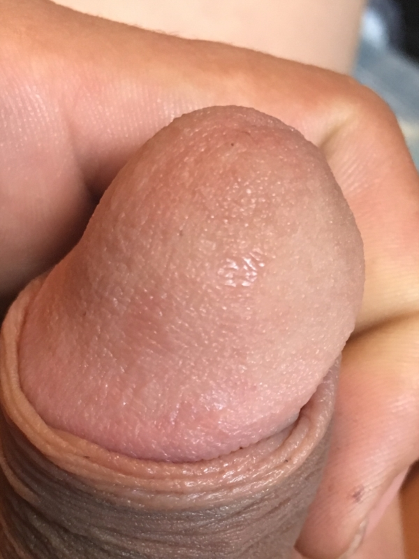 rashes-on-dick