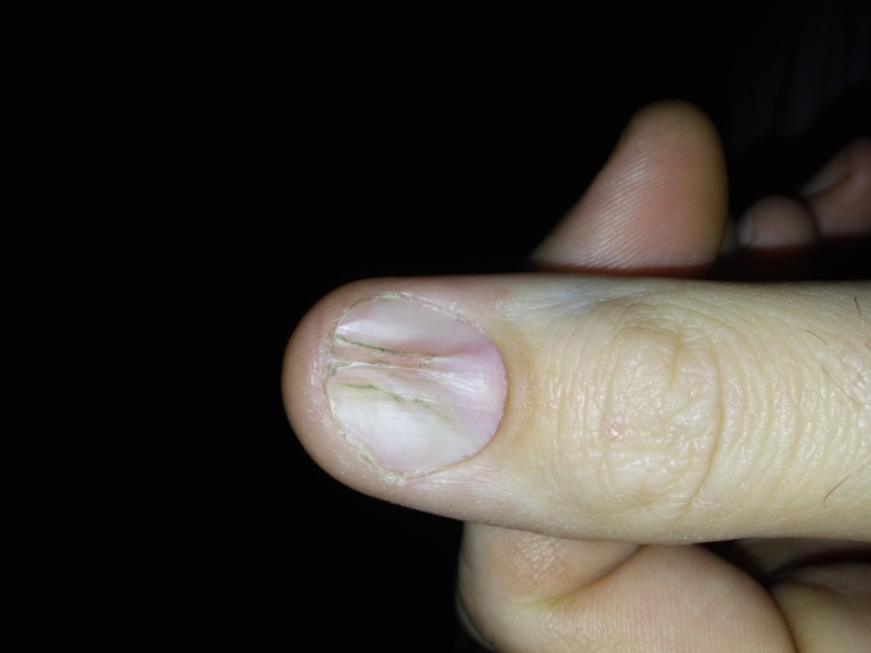 Right thumbnail vertical split, left beginning | Nail Disorders ...