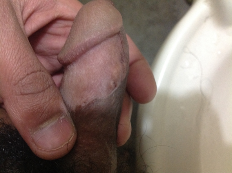 Red Spot On Penis