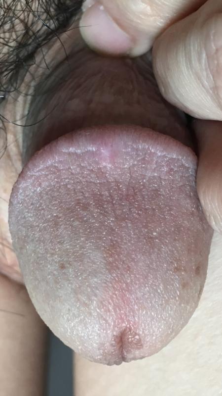 More like Multiple soft purple lumps on penis