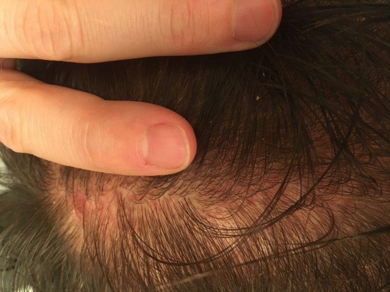Recently Diagnosed with Lichen Planopilaris (scalp) | Lichen