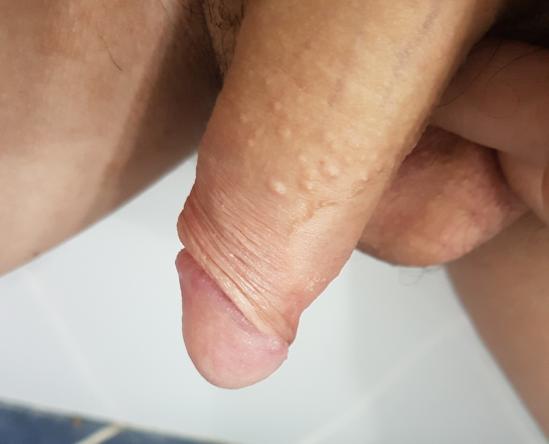 RACGP  Penile appearance lumps and bumps