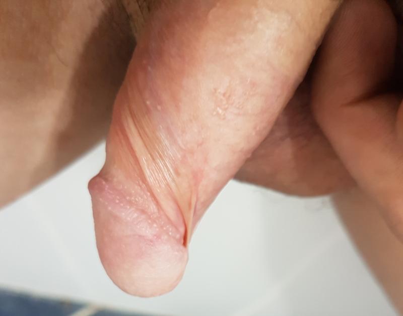 Rosacea treatment, causes, types, symptoms pictures