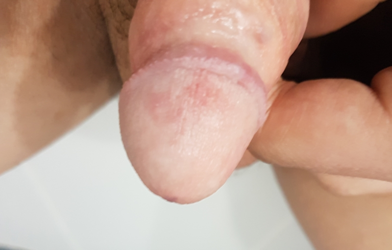 Virgin bumps on penis