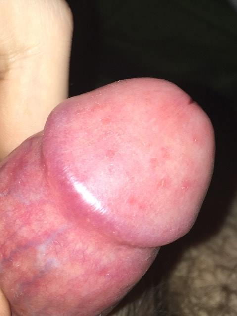 Red spot on penis tip