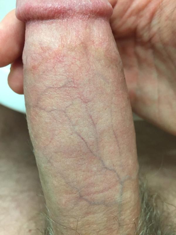 Suspected penile fracture