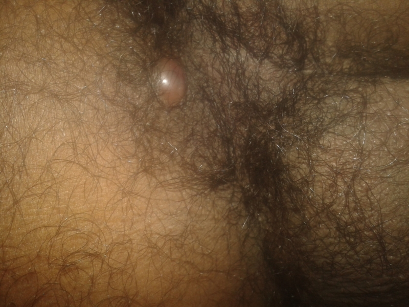 Fleshy bump on anal opening
