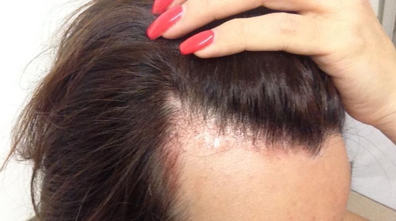 seborrheic dermatitis | alopecia and hair disorders | patient