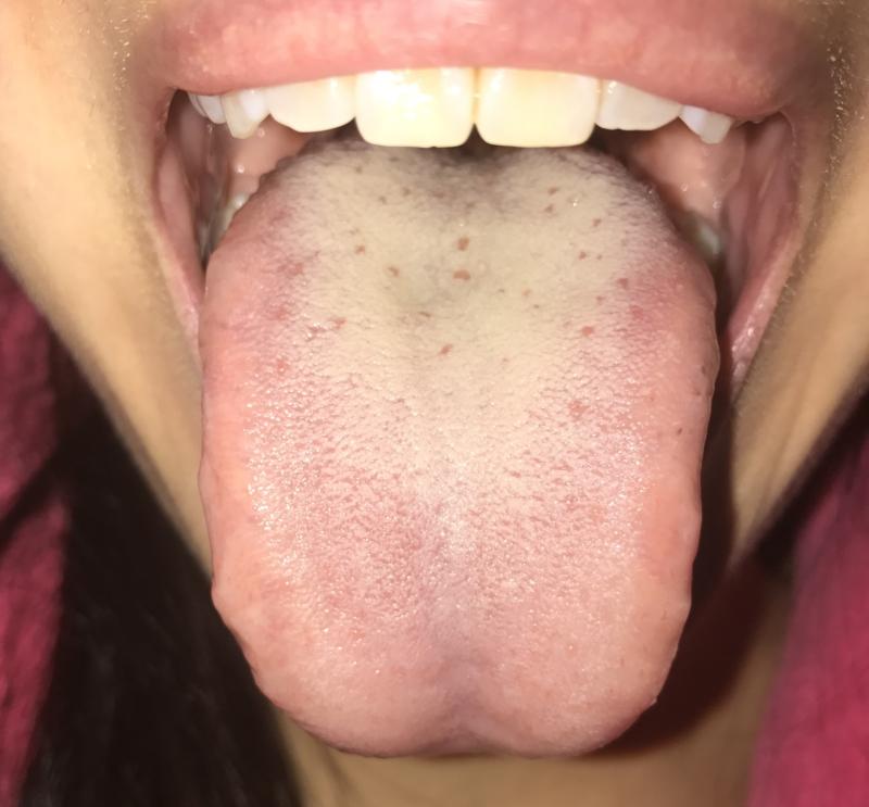 sex-videos-pics-of-oral-thrush
