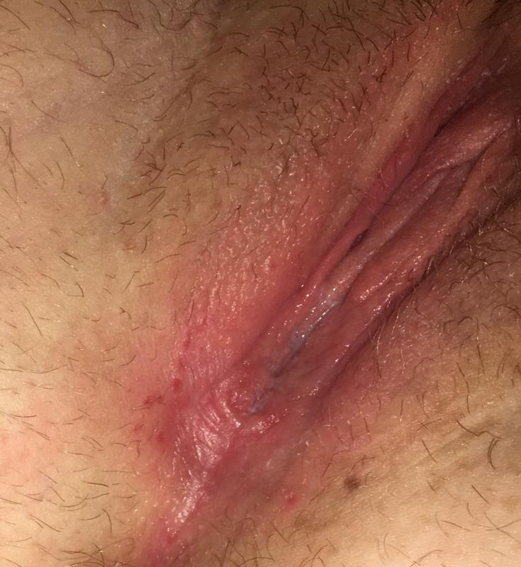 Herpes during pregnancy BabyCenter