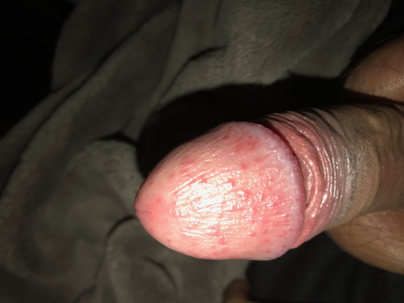Spots on penis head after sex