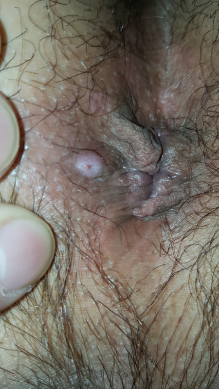 Funari small white bumps in anus