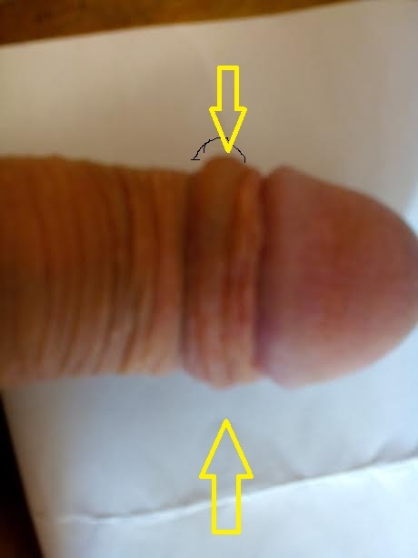 band penis on of Tight skin