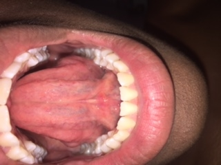 patch on tongue pink