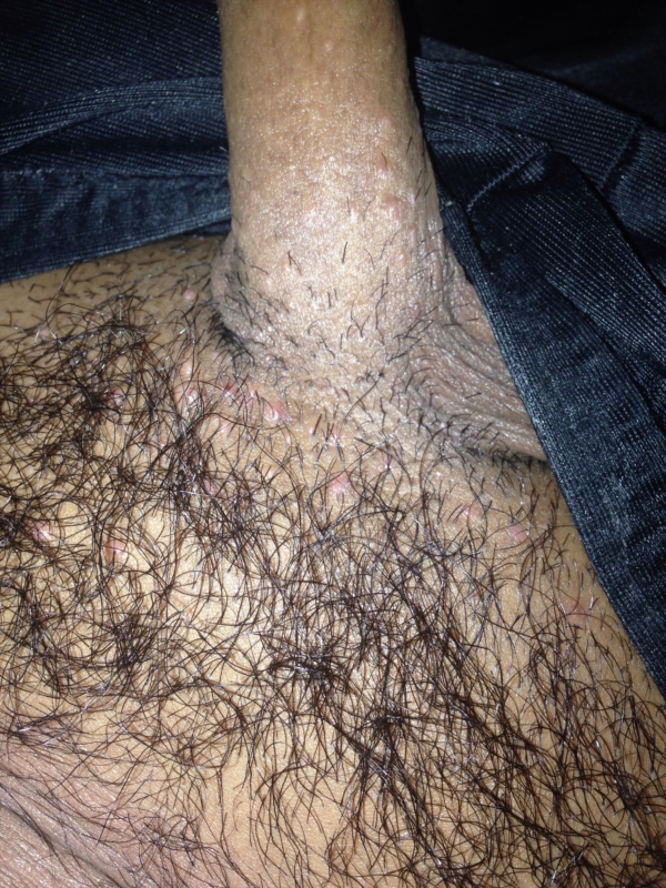 Bumps On Area Small Red Bumps Pubic Hair Area Skin