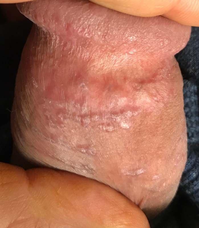 Pimple on penis