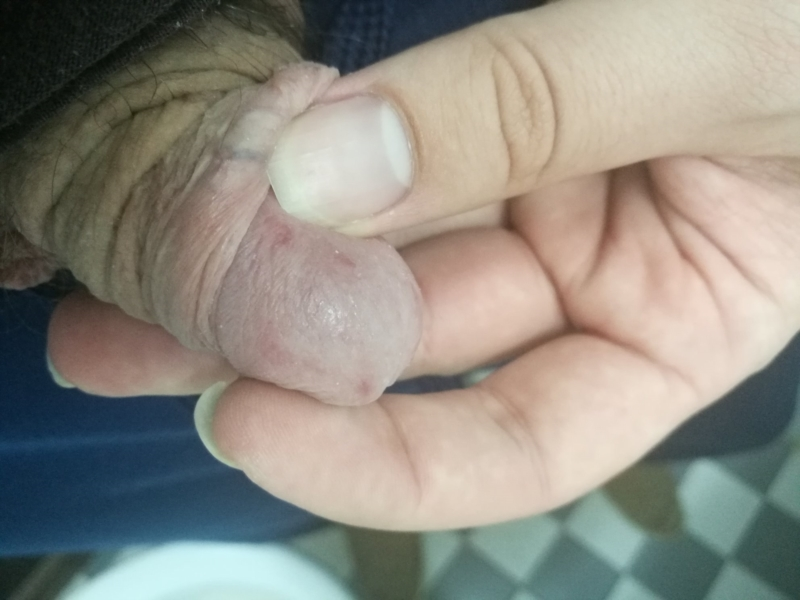 Wrinkly skin around shaft after sex