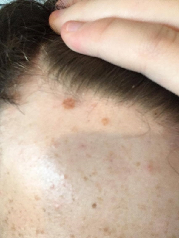 Do these moles/spots look normal | Dermatology | Forums