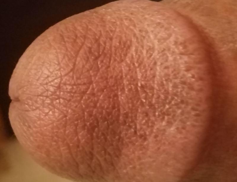 genital herpes penis pictures