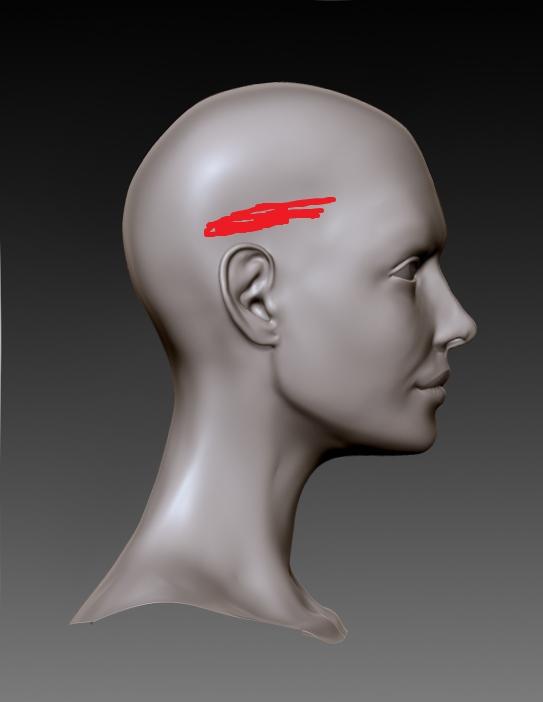 Having Pain On Lower Right Side Of Head   Brain Tumor