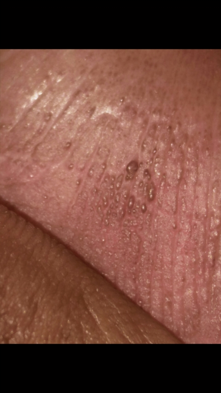 6059f0e0d746 Micro bumps on penis head