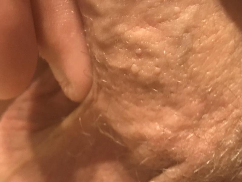 do genital warts bleed