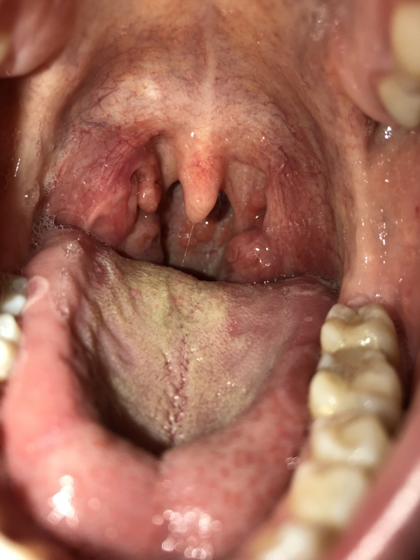 Sore Throat With Brown Spots At The End Of My Mouth And Throat
