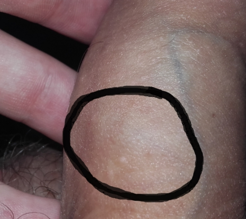 Soft lump on penis 1