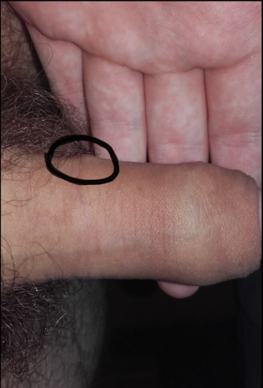 Lump at base of penis