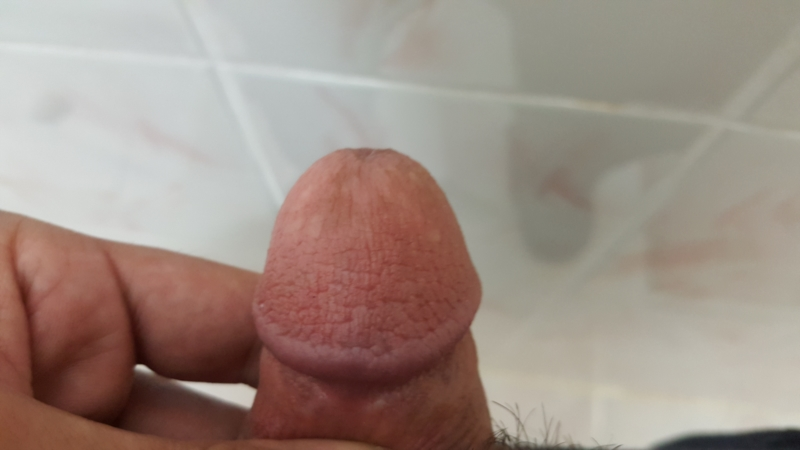 Spots on back masturbation images 364