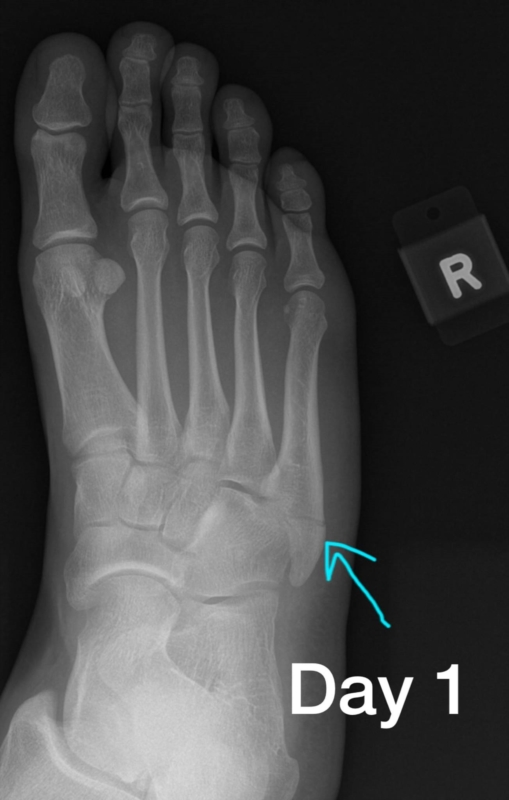 5th metatarsal broken  should i worry about non