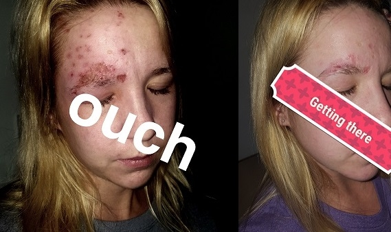 Post Shingles And Scar Laser Removal Too Soon Does It